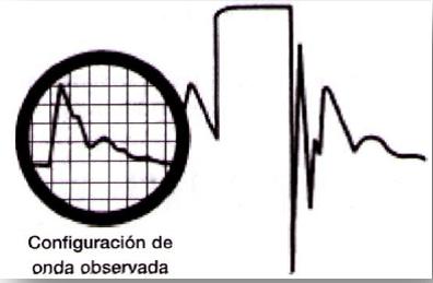 Amortiguación de la presión arterial