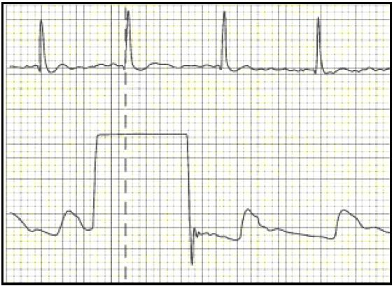 Colocación de un catéter arterial para la medición de la..