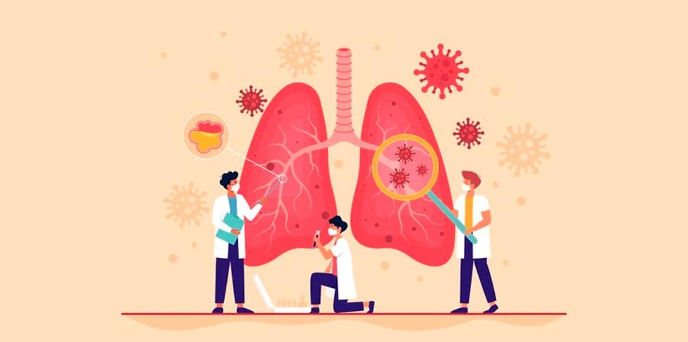 Síncope y Embolia Pulmonar